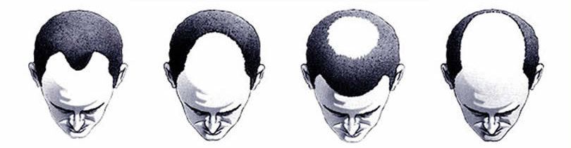 male-pattern-baldness-scale