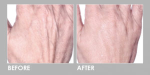 BEFORE & AFTER PROFHILO INJECTION