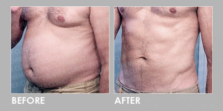 BEFORE & AFTER LIPOCELL BODY RESHAPING
